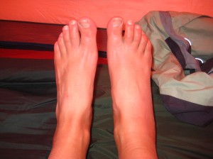 Swollen foot (right) before it got really bad